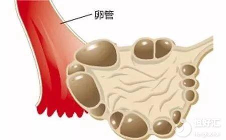 多囊卵巢综合征最惦记肥胖人群,是真的吗?