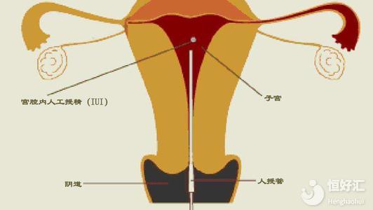 供精人工授精流程揭秘,你不知道的还有这几点!