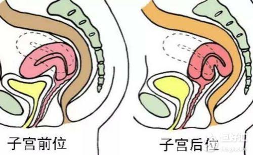 子宫后位很难怀孕吗?医生:掌握这两点轻松受孕
