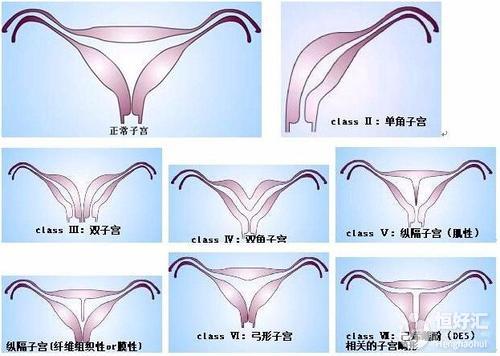 子宫畸形疾病,你了解多少?
