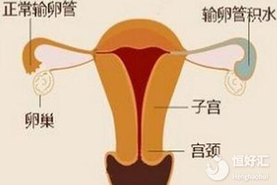 子宫异常不会影响试管婴儿?请看完这个再下定论