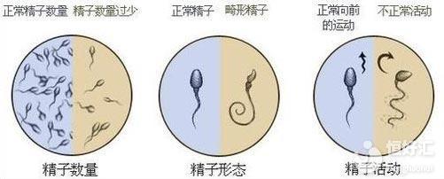 精子异常会提高宝宝畸形率?医生辟谣来了