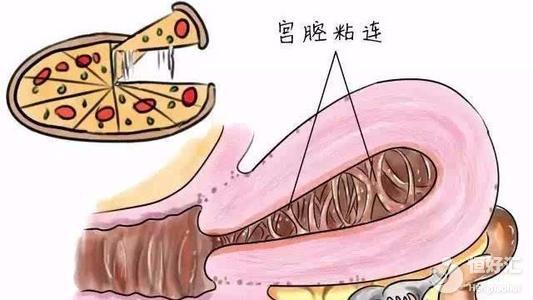 宫腔粘连影响生育?做好这几点助你快速怀孕