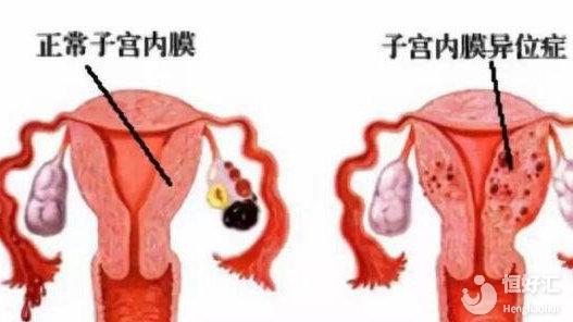 你知道子宫内膜异位症都有哪些表现吗?快看这里