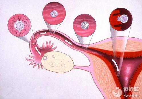 输卵管积水有可能做试管婴儿吗?关键点在这