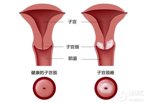 这3种子宫疾病容易引起不孕,快来看看你有吗?