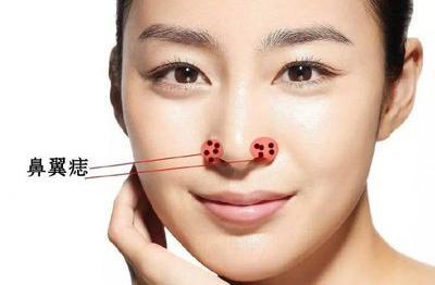 男性鼻子上的痣代表什么含义呢?
